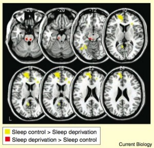 brain on sleep