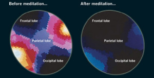 meditation-brain-waves